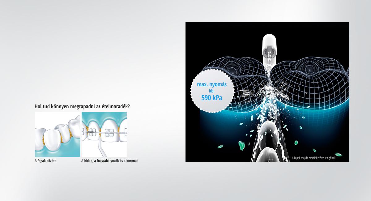 Az erős vízsugár kiszorítja a baktériumokat és az ételmaradékokat a fogmosás által nem elérhető hasadékokból