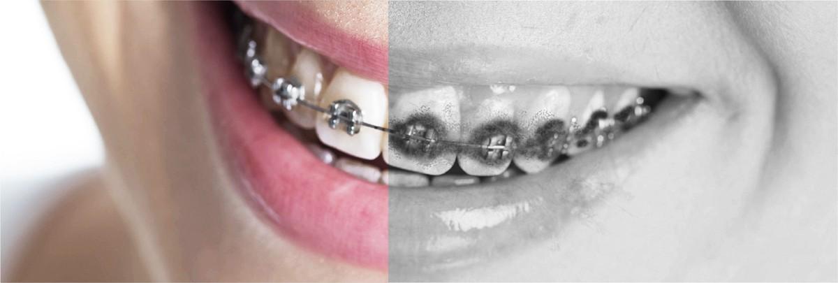Vệ sinh răng miệng khi đang niềng răng là một thử thách lớn.