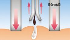 Fájdalomcsökkentő bőrvédő